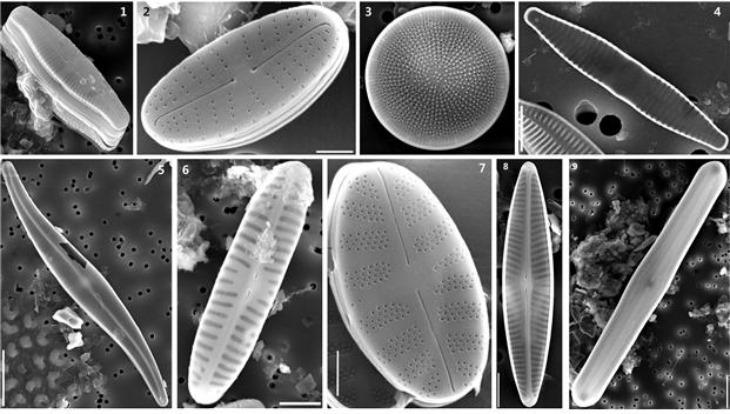 미기록종 전자현미경 사진.jpg